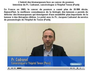 Doctissimo - Entretien Pr Jacques Cadranel